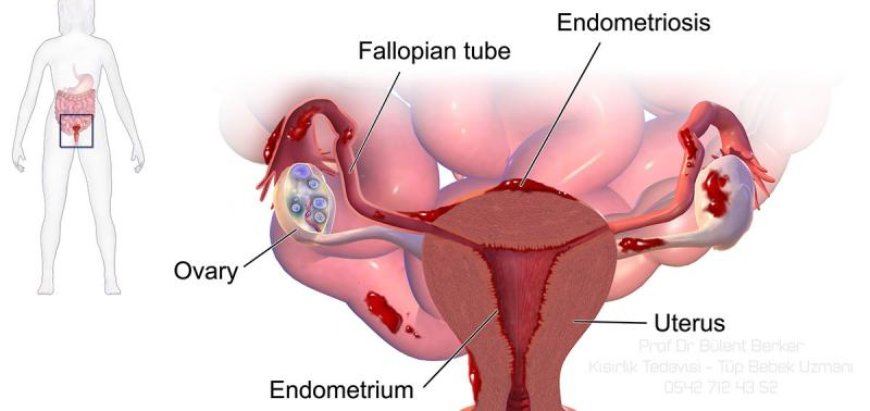 Endometriozis